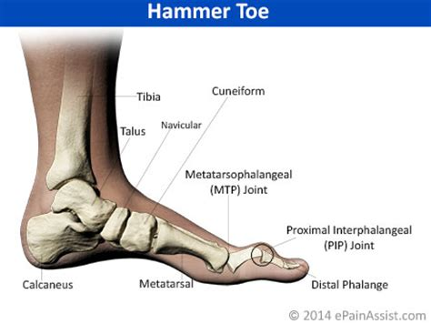 Foot Pain & Its Anatomical Distribution Causes of Foot Pain