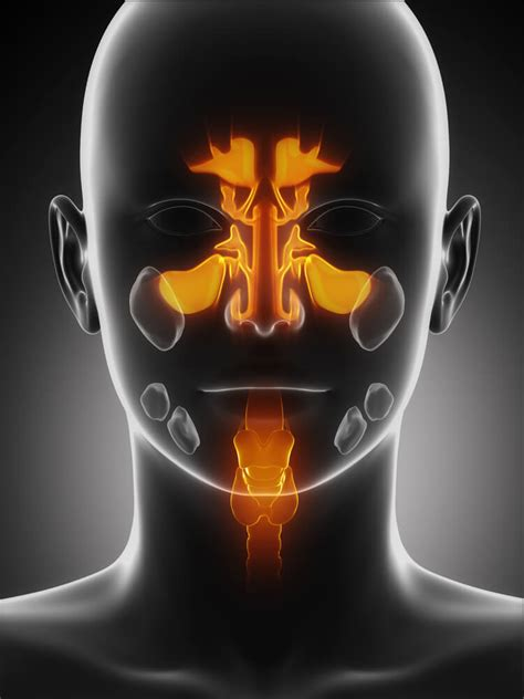 House Call Doctor : When Is a Sinus Infection Serious