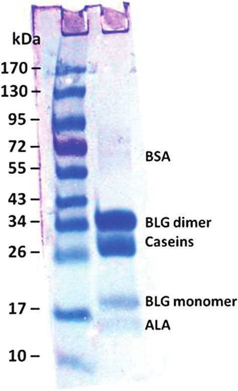 Coomassie blue–stained polyacrylamide gel after the