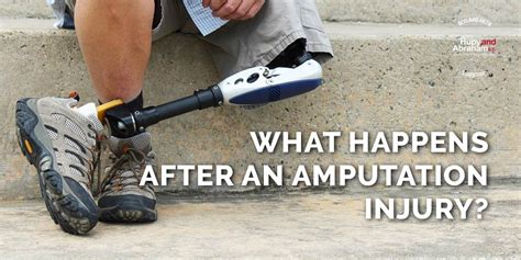 Personal Injury Accident Amputation Injury Recoveries