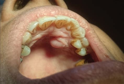 Solitary neurofibroma of the palate mimicking mucocele: A